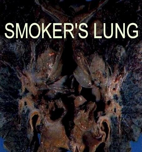 smoking_lungs_black.JPG