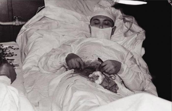 الإنسان الوحيد في العالم الذي قام بإجراء عمليه جراحيه كبري لنفسه.jpg